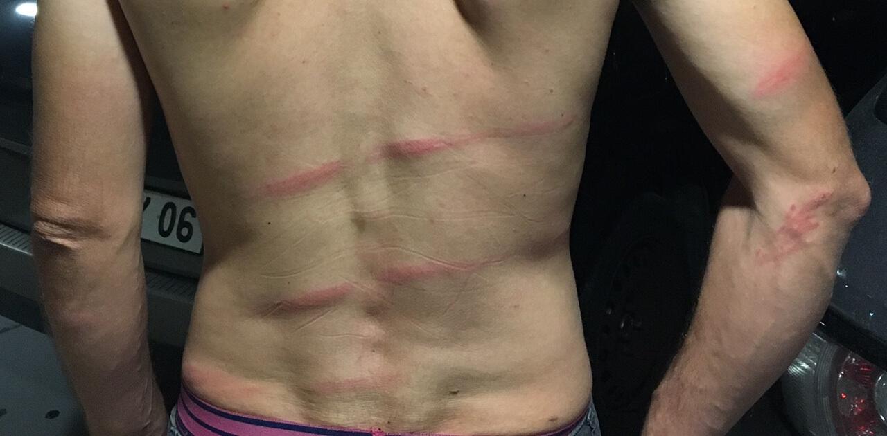 Des circassiens agressent violemment des militants pour les animaux en Avignon